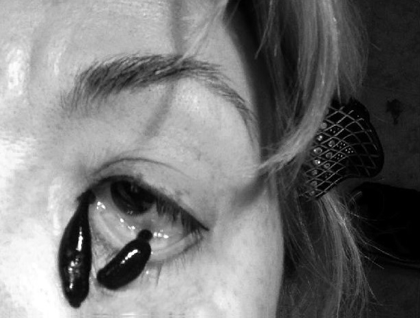 картинка гирудотерапия в косметологии развелись создали